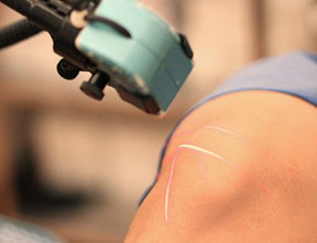 joint and muscle pain treatment using cold laser and light therapy featuring erchonia lasers